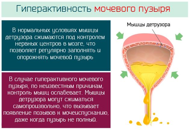 лечение гиперактивного пузыря