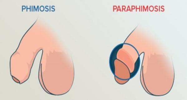 фимоз и парафимоз в москве