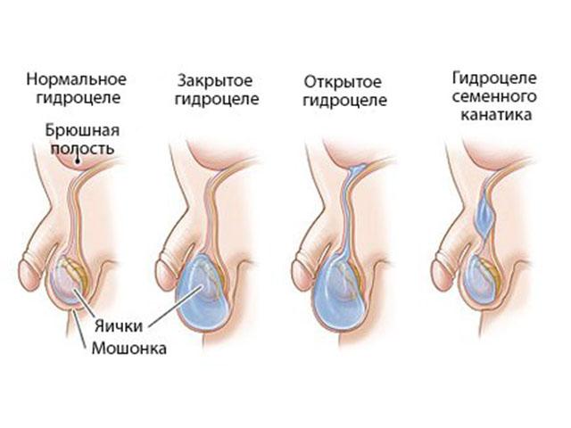 лечение гидроцеле