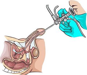 уретероскопия в клинике