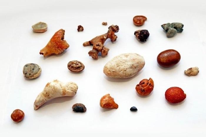 Камень в уретре - Болезни почек