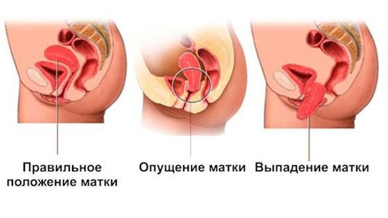 лечение опущеных тазовых органов