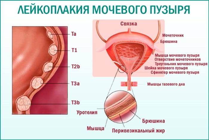 Лейкоплакия мочевого пузыря у женщин – первые симптомы и лечение